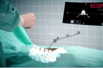 Microsoft HoloLens จากเกมมิ่งสู่เครื่องมือช่วยแพทย์ผ่าตัดกระดูกสันหลัง
